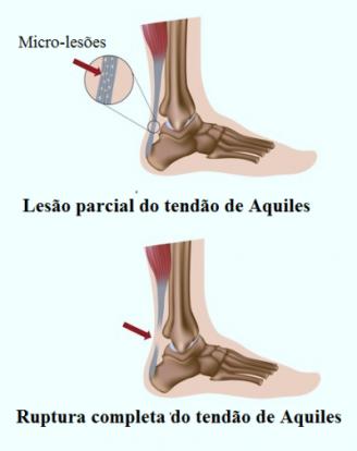 Ruptura-do-tendão-de-Aquiles-400x505
